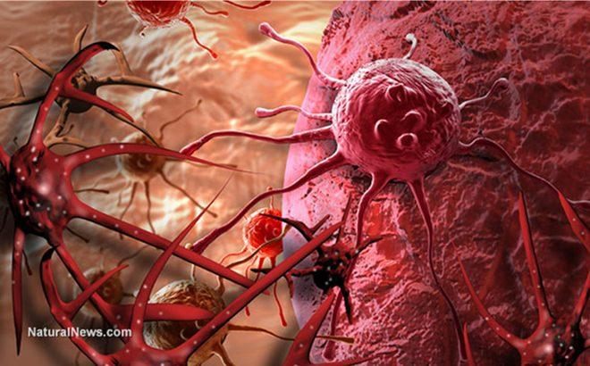 Đông trùng hạ thảo tốt cho người bệnh ung thư như thế nào?