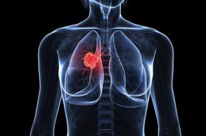 đông trùng hạ thảo có tác dụng với ung thư phổi di căn